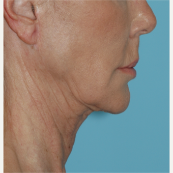 62 year old woman underwent revision facelift before 3730798