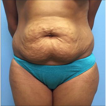 34 year old woman treated with Tummy Tuck and liposuction of the waist before 2519288