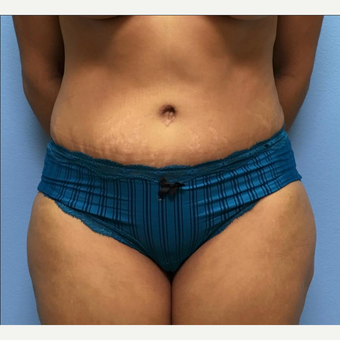 34 year old woman treated with Tummy Tuck and liposuction of the waist after 2519288