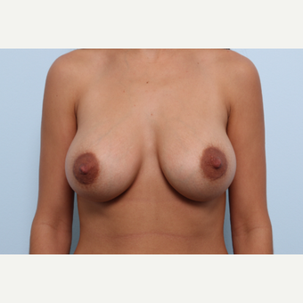 Breast Augmentation after 3377862