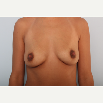 Breast Augmentation before 3377862