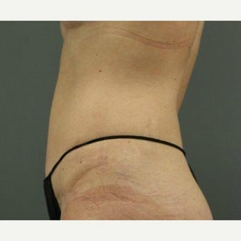 45-54 year old woman treated with Tummy Tuck 1799040