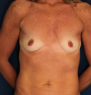 45 Year Old Female with Silicone Breast Augmentation before 1428541