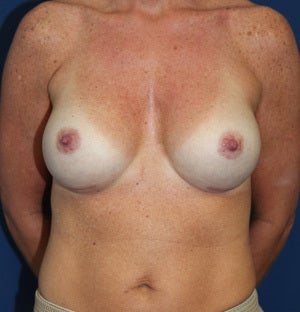 45 Year Old Female with Silicone Breast Augmentation after 1428541