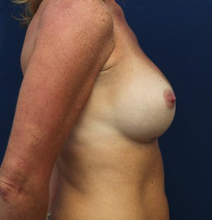 45 Year Old Female with Silicone Breast Augmentation 1428541