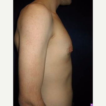 25-34 year old man treated with Male Breast Reduction after 3711763