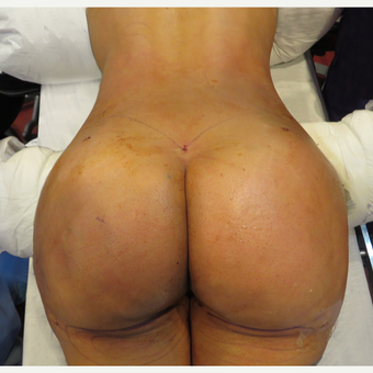 25-34 year old woman treated with Brazilian Butt Lift after 3446895