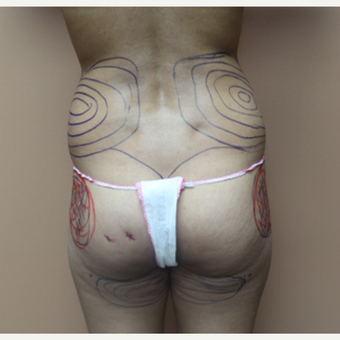 25-34 year old woman treated with Brazilian Butt Lift before 3446895