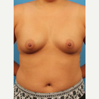 32 year old woman treated with Breast Implants before 3102454