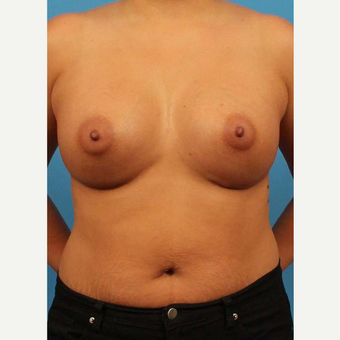 32 year old woman treated with Breast Implants after 3102454