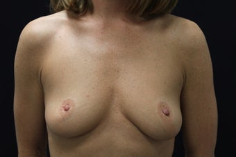 43 year old women breast augmentation before 1205375
