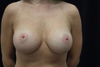 43 year old women breast augmentation after 1205375