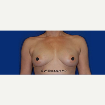 35-44 year old woman treated with Breast Fat Transfer after 3765523