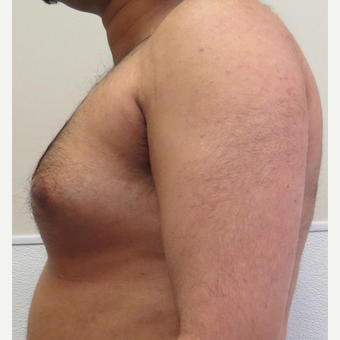 Male Breast Reduction for this 32 Year Old Man before 2997892