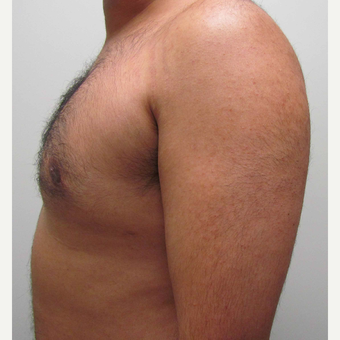 Male Breast Reduction for this 32 Year Old Man after 2997892