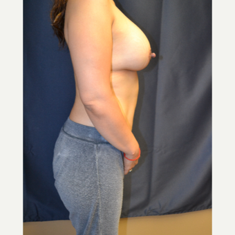 35-44 year old woman treated with Breast Augmentation after 3763780