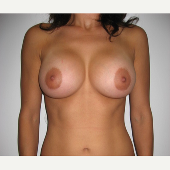 25-34 year old woman treated with Breast Implants after 2995552