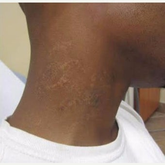 18-24 year old man treated with Tattoo Removal after 1946260