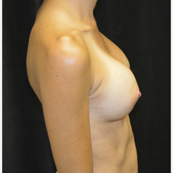35-44 year old woman treated with Breast Augmentation after 3423894