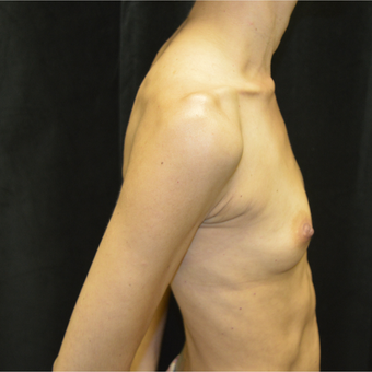 35-44 year old woman treated with Breast Augmentation before 3423894