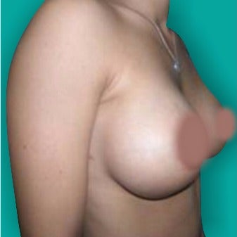 25-34 year old woman treated with Breast Augmentation after 3242188