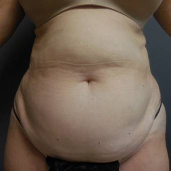65-74 year old woman treated with Tummy Tuck before 3788580