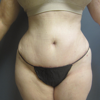 65-74 year old woman treated with Tummy Tuck after 3788580
