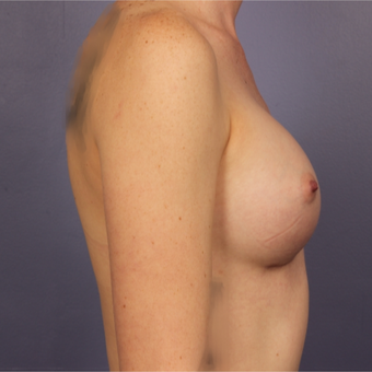 Breast implants after 3646877