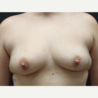 18-24 year old woman treated with Breast Augmentation before 3225573