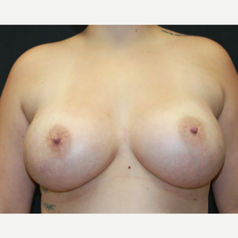 18-24 year old woman treated with Breast Augmentation after 3225573