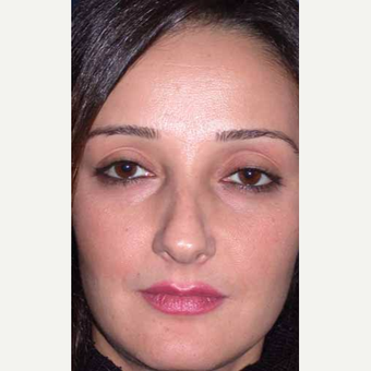 35-44 year old woman treated with Rhinoplasty before 3521215
