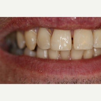 35-44 year old man treated with Dental Bonding after 2651248
