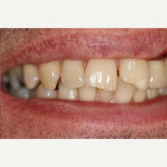 35-44 year old man treated with Dental Bonding before 2651248