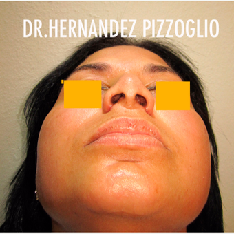 18-24 year old woman treated with Rhinoplasty after 3842602