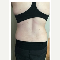 35-44 year old woman treated with SculpSure before 3125063