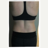 35-44 year old woman treated with SculpSure after 3125063