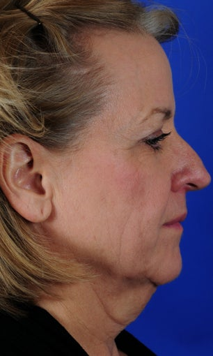 Procedures: Full Face - Neck Lift, Submentoplasty, Fat Transfer to Temples, Cheeks, and Perioral 1034738