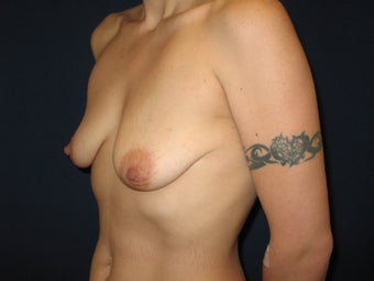 34 year old female wanting breast augmentation before 698230