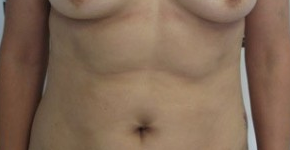 Liposuction before 3094213