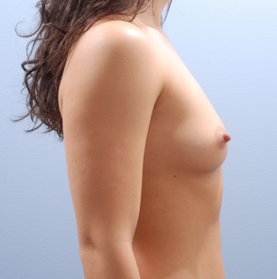 Transaxillary breast augmentation (BEWISE) 235360