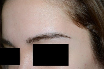 Eyebrow Graft