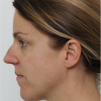 35-44 year old woman treated with Septoplasty before 3605557