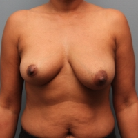 46 year old woman had breast augmentation with the Ideal Implant before 3390724