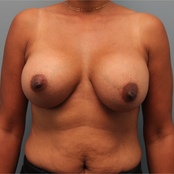 46 year old woman had breast augmentation with the Ideal Implant after 3390724