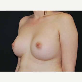 25-34 year old woman treated with Breast Implants after 3651067