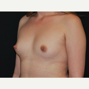 25-34 year old woman treated with Breast Implants before 3651067