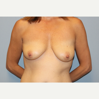 25-34 year old woman treated with Breast Lift with Implants before 3537139