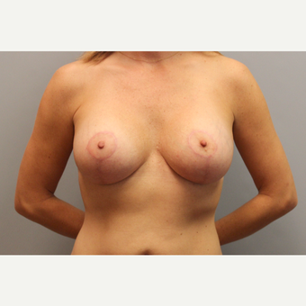 25-34 year old woman treated with Breast Lift with Implants after 3537139