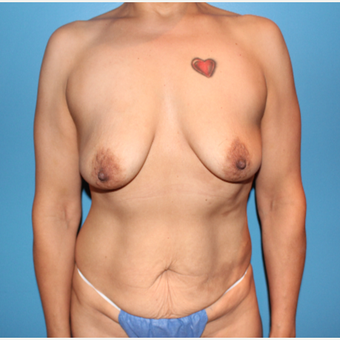 35-44 year old woman treated with Breast Augmentation before 3647090