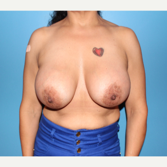 35-44 year old woman treated with Breast Augmentation after 3647090